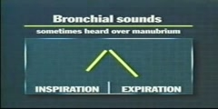 Different Types of Breath Sounds