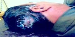Basilar migraine surgery