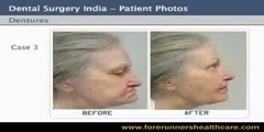 Cheaper Dentures Treatment in India