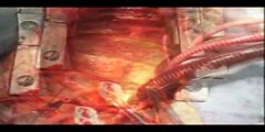 Open Heart Surgery video