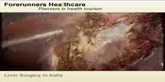 Liver Surgery - India