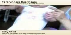 Meningocele surgery in India