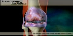 Animation of Knee Replacement