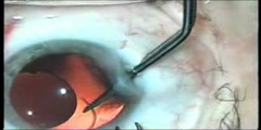 Implantation of a hard intraocular lens
