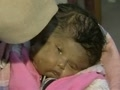 Baby born with 2 Faces