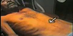 Clinical Examination of Abdominal Lump