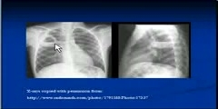 Cavitating Lesions - Chest X-Ray