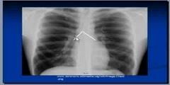Mediastinum And Surrounding Structures on Chest X-Ray
