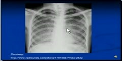 Miliary Tuberculosis -Chest X-Ray