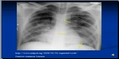 nterpretation of Chest X-Ray