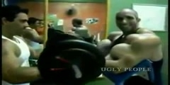 Bigger muscles victims of synthol and non muscle developing methods