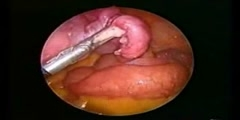 Cholecystectomy with Hysterectomy Watch Video