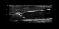 Central Venous Catheterization with Ultrasound Guidance