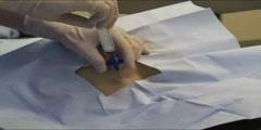 Bone Marrow Biopsy Procedure Aspiration Pain Results