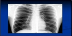 Chest x-ray Showing Silhouette