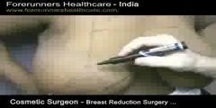 Cheaper Breast reduction in India