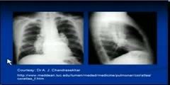Sarcoidosis- Chest x-ray interpretation