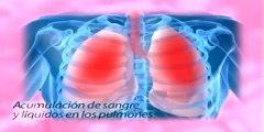 Insuficiencia cardiaca French language