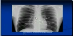 Chest x-ray Superior mediastinal structures