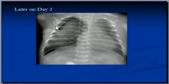 Chest x-ray interpretation, RDS Tutorial