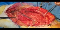 Laparostomy Surgical Closure Video Presentation
