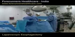 Laparoscopic Esophagectomy - India