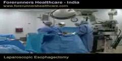 Laparoscopic Esophagectomy - India