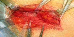 Using sofradim mesh for hernia repair