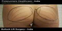 Lowest Cost for Butt Reshaping for a Brazilian Butt Lift surgery in India