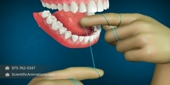 Dental Flossing
