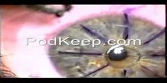 Live Radial Keratotomy Operation