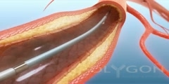 Atherosclerosis Balloon and Stent Procedure