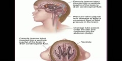 Video of Hydrocephalus